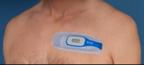 energy-harvesting-for-smart-bandages
